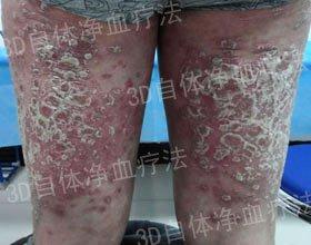 牛皮癣疾病是否会遗传呢