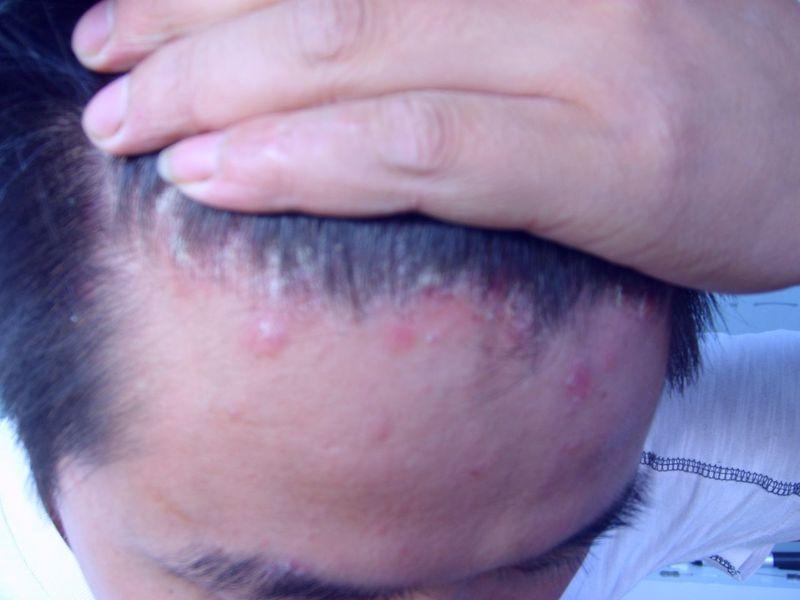 头皮银屑病症状