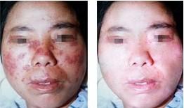 脸部牛皮癣怎么治疗